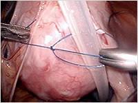腹腔鏡を用いた腹膜透析カテーテル留置法の施行写真